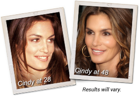 Cindy Crawford Before & After with Meaningful Beauty®